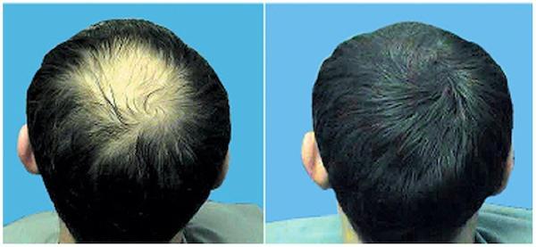 Proses Penyembuhan Rambut Rontok