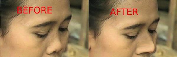 Efek Alat Pemancung Hidung Nose Up Clipper